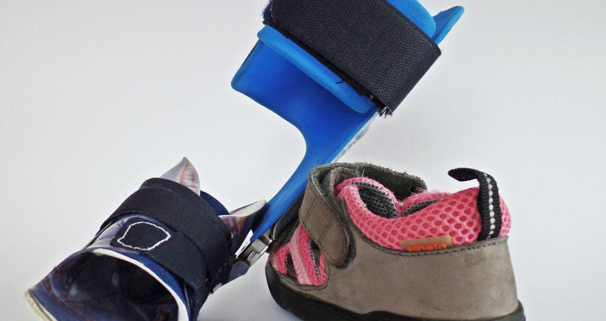Orteza stopowa – stabilizacja uszkodzonego stawu